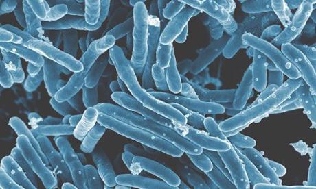 電子顕微鏡で見た結核菌 提供:米国立アレルギー感染症研究所